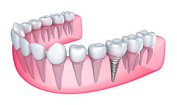 Dental Implants Stafford VA